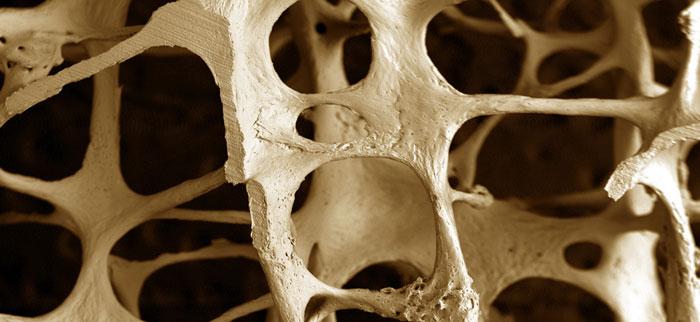 osteoporosis700